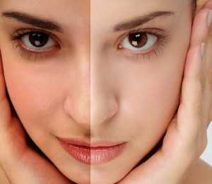 How To Stop Acne Using Reliable Methods 0