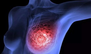 Breast Cancer Awareness, Types, Symptoms, Stages, Risk Factors, Diagnosis and Treatment