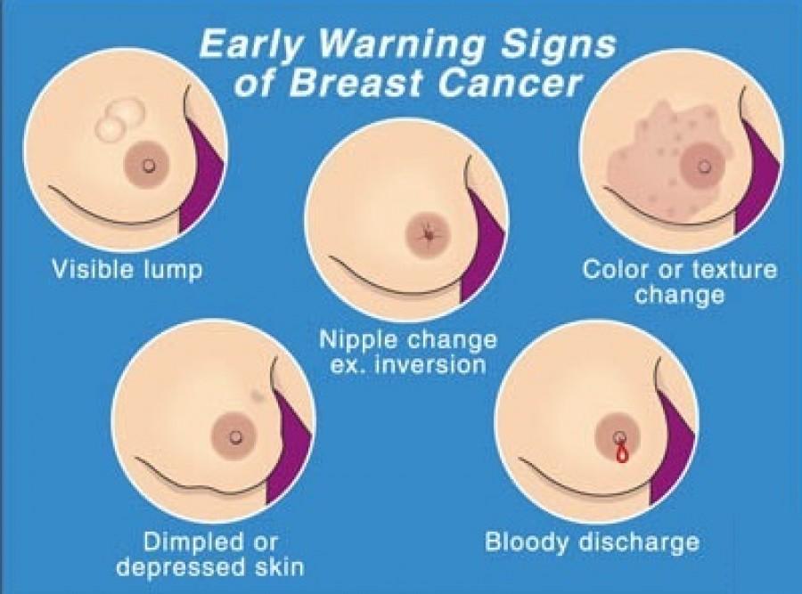 Nipples cancer